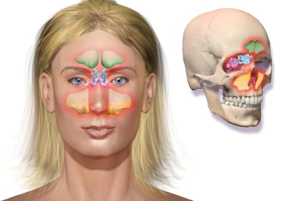 250516-sinusitis