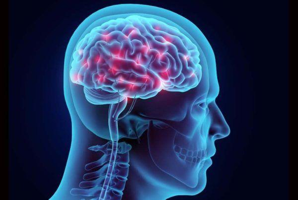 040118-cerebro