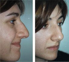 Cirugia-estetica-nasal-1