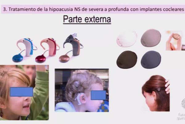 Hipoacusia-infantil-cesar-orus