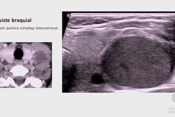 Radiologia-orl-infantil